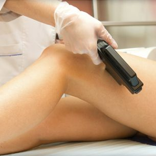 375x321_laser_hair_removal_ref_guide